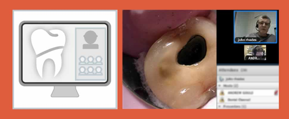Image of a live webinar on The Dental Channel